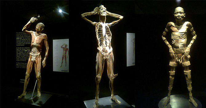 our body1